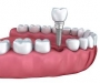 Best Tooth Implant Cost Sydney